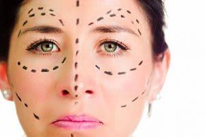 Enxerto de gordura facial
