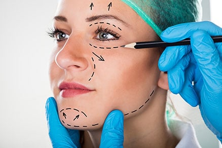 Ritidoplastia