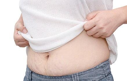 Mini- abdominoplastia