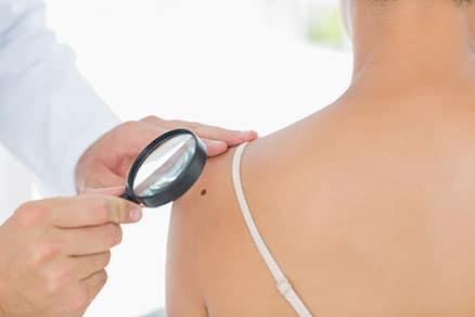 Tumor de pele