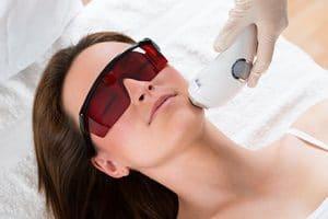 Peeling e Laser