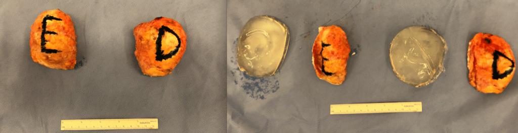 Explante em bloco significa a retirada da prótese mamária